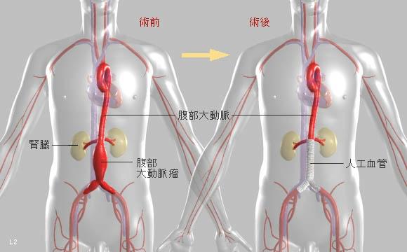 腹部 大動脈 瘤 初期 症状